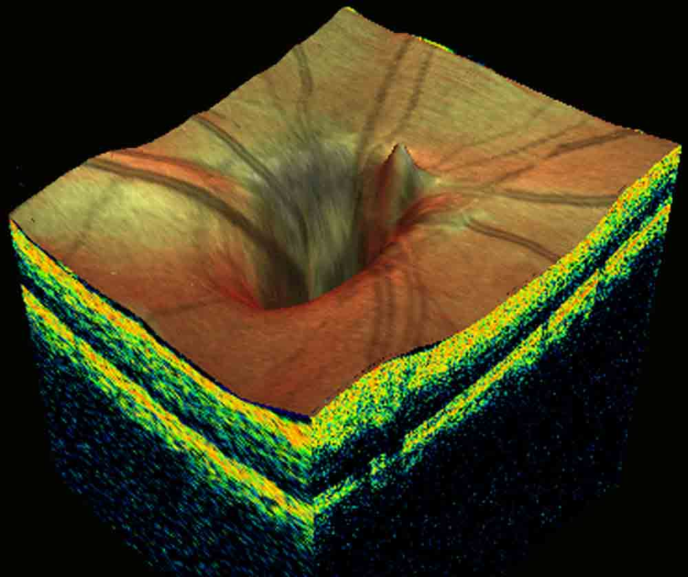 3d-glaucoma-disk